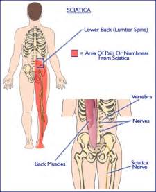 does pinched sciatic nerve affect erection nerves picture 14