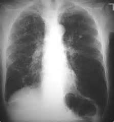 microbacterial pneumonia picture 1