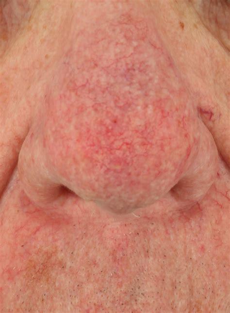 acne rosacea phymatous picture 15