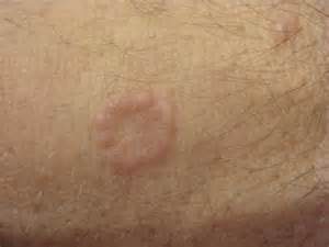 patterned rash small circles picture 10