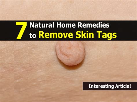 home remedies skin tags picture 7