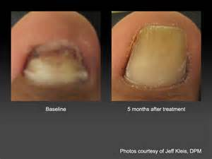 laser nail fungus treatment in alabama picture 1