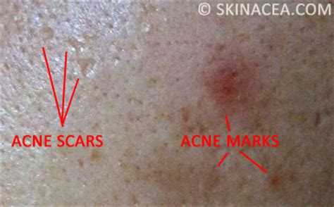 acne scars pock marks picture 18