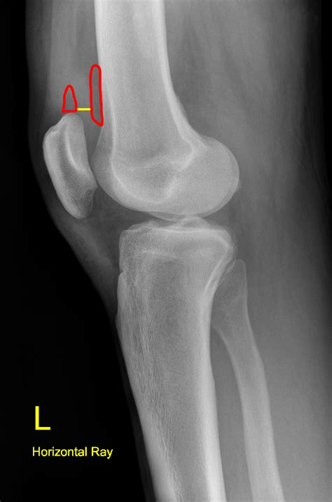small knee joint effusion picture 3