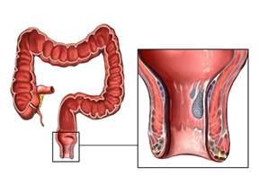 polyps of the colon picture 1