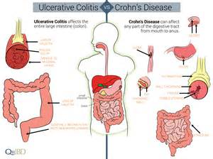 intestinal tract picture 6