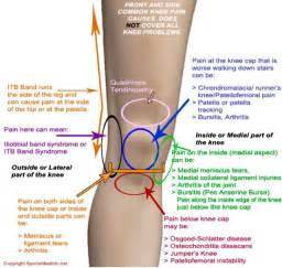 knee pain picture 5