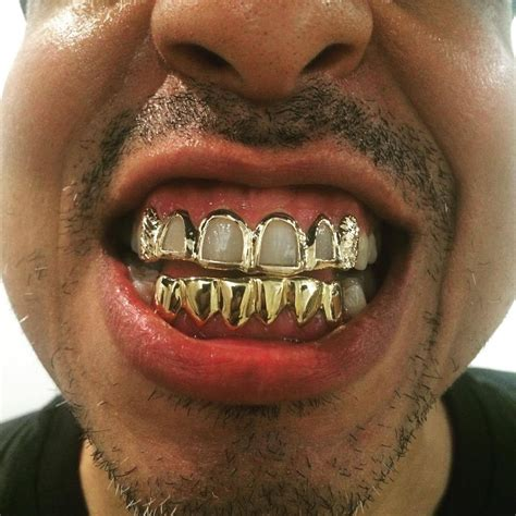 all gold and whitegold teeth picture 5