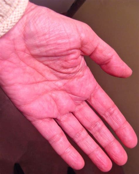 chemotherapy effects on skin picture 9