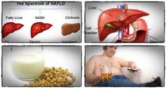 solutions for liver problems picture 9