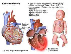 inflammatory el disease statistics picture 7