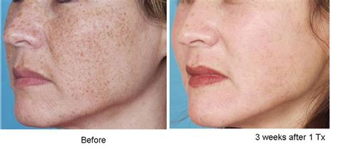 ipl laser results on acne marks picture 2