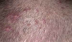 can abraxane cause acne on scalp picture 15