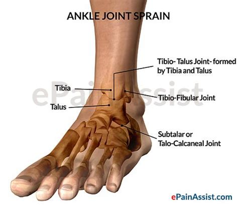 ankle joint pain picture 13