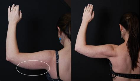 cary laser hair removal picture 10