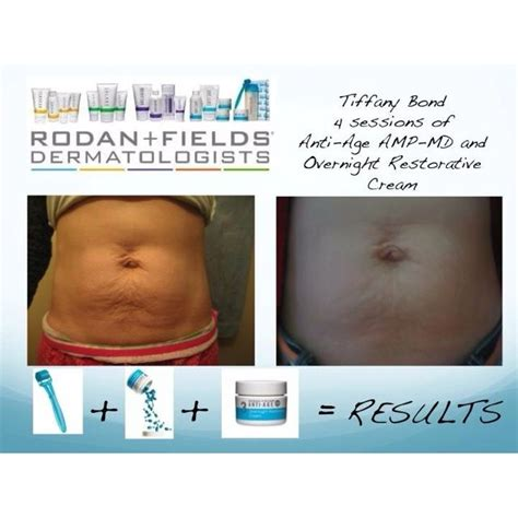 rodan and fields for stretch marks picture 14