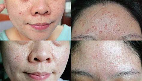 cystic acne how to prevent picture 3