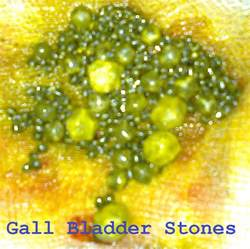 gall bladder symptoms women over 50 picture 3