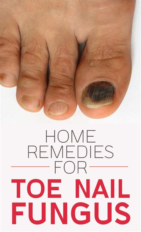 what vitamin help fungus under your nails picture 3
