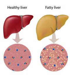 fatty deposits on the liver picture 13