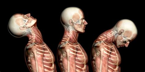 muscle spasms neck picture 7