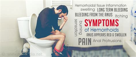 info on hemorrhoids and bleeding picture 13