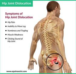 popping of the hip joint picture 1