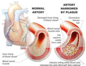 diet and arteriosclerotic heart disease picture 11