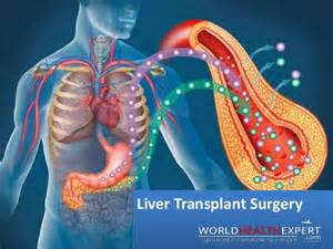 liver transplant surgery picture 7