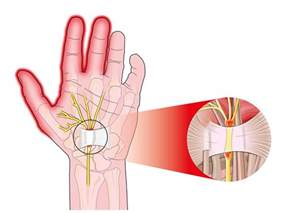 joint pain in wrist area radiating down mid picture 3