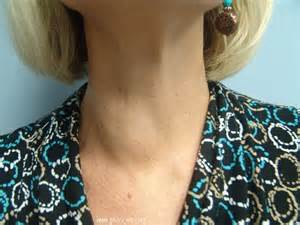 enlarged thyroid with nodules picture 1