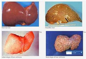 cirrhosis of the liver due to alcohol picture 13