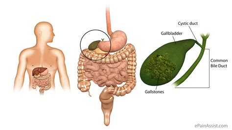 gall bladder attack symptoms picture 3