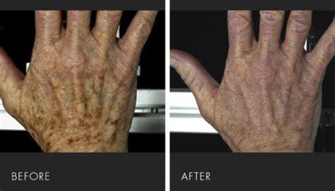 acne treatments picture 10