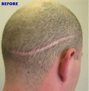 hair transplant removal picture 9