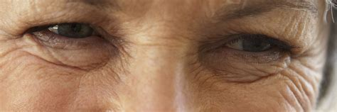 ativan fine lines and wrinkles picture 10