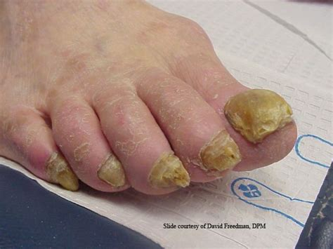 my has a fungus on her toenail picture 6