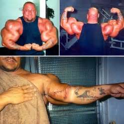 is hgh dangerous picture 17