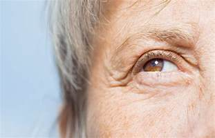 dry, red eyes, liver disease picture 13