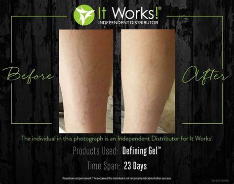 what works best for cellulite picture 14