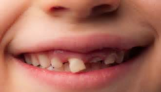 childrens braces for teeth picture 6