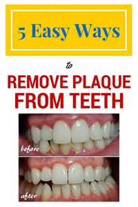 natural supplement that rids tooth plaque picture 1