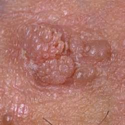 doctors in sylacauga alabama genital warts or hpv picture 21