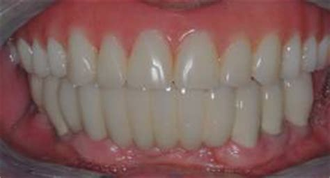all teeth picture 14