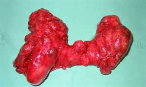 hemi-thyroidectomy for cold nodule picture 3