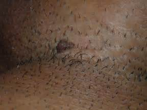 genital warts in area picture 2