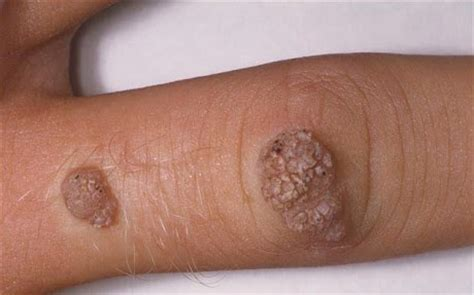 symptoms tiny warts on palm picture 22