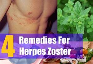 herpes home remedy picture 2
