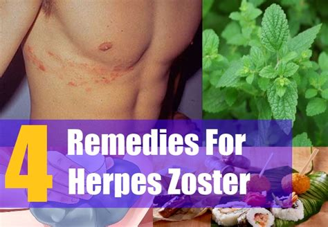 treatment for herpes zoster picture 6