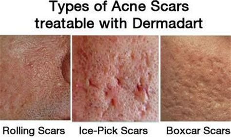 ice pick scars before and after picture 13